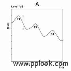 助听器通道数越多越好吗-2