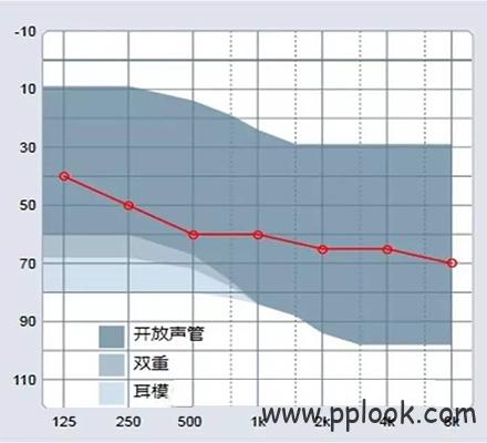 助听器效果评估-3