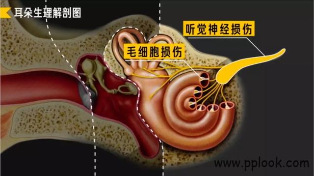 听力损失-9
