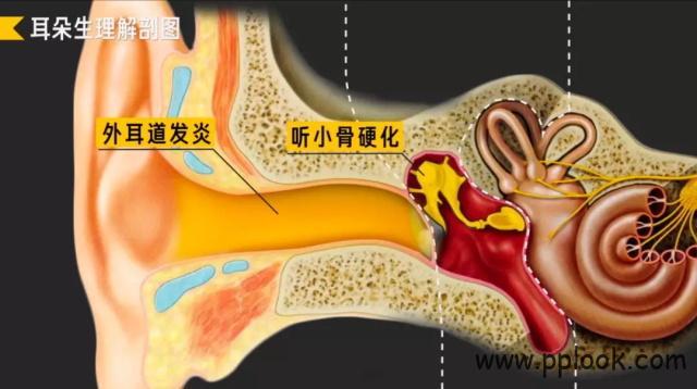 听力损失-8
