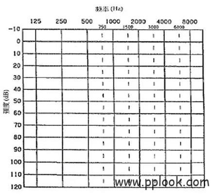 听力图谱分析-1