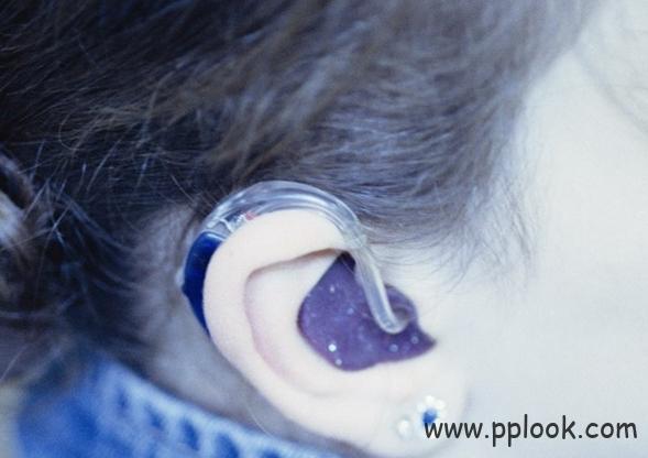 助听器耳模
