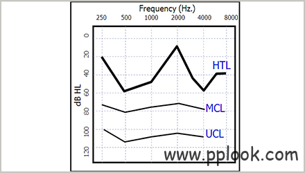 不规则型听力损失的调试技巧-2